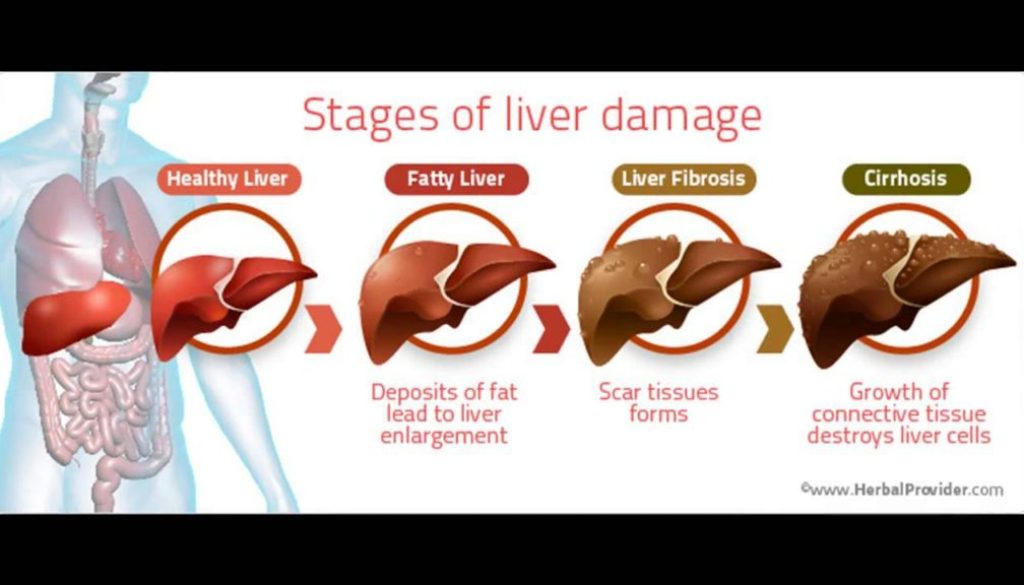 youtube fatty liver