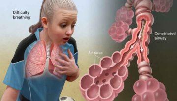 asthma 1